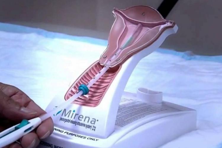 удаление внутриматочной спирали